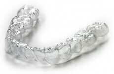 clear-aligners-e1476884287620
